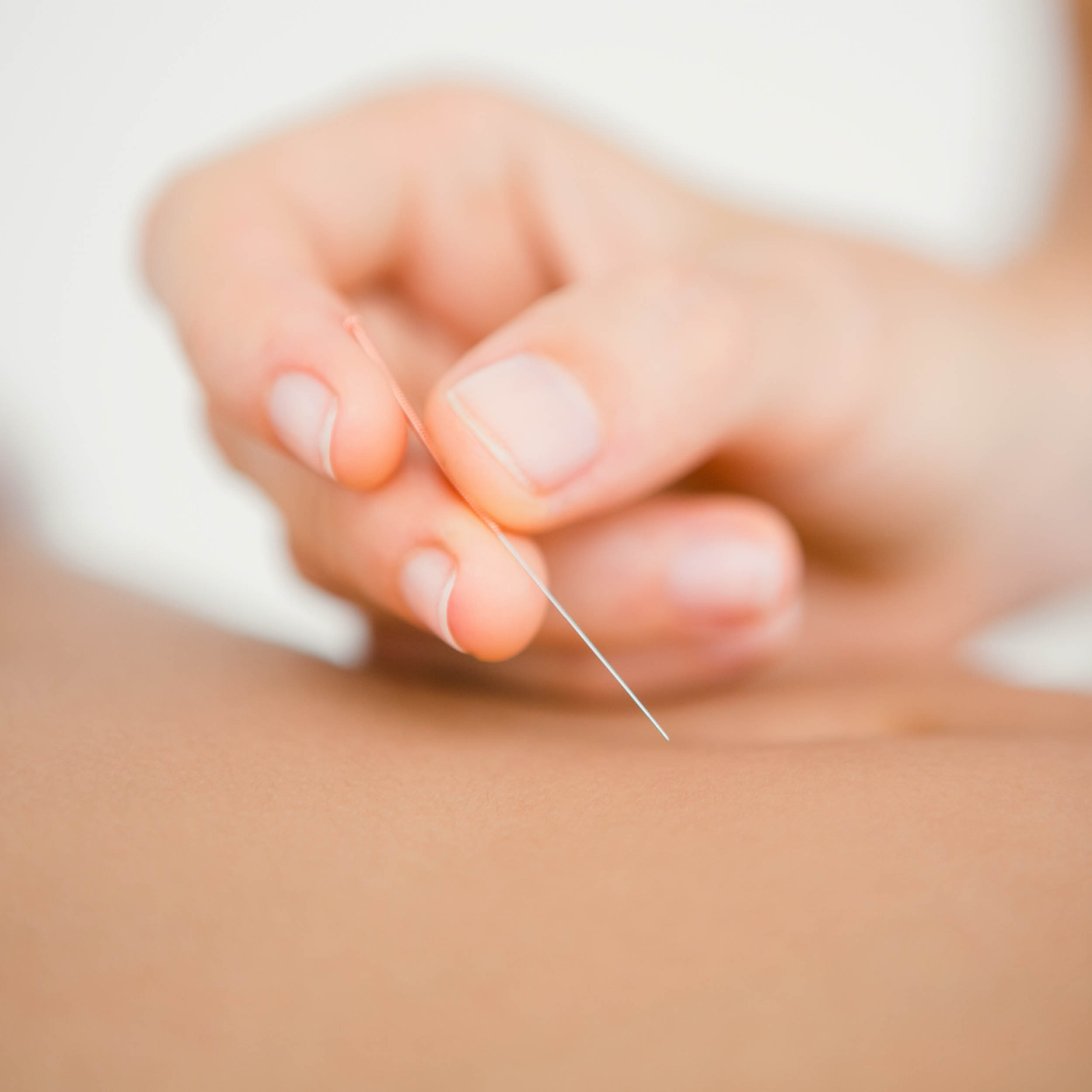 Massagestudio Touch of Health Dry Needling